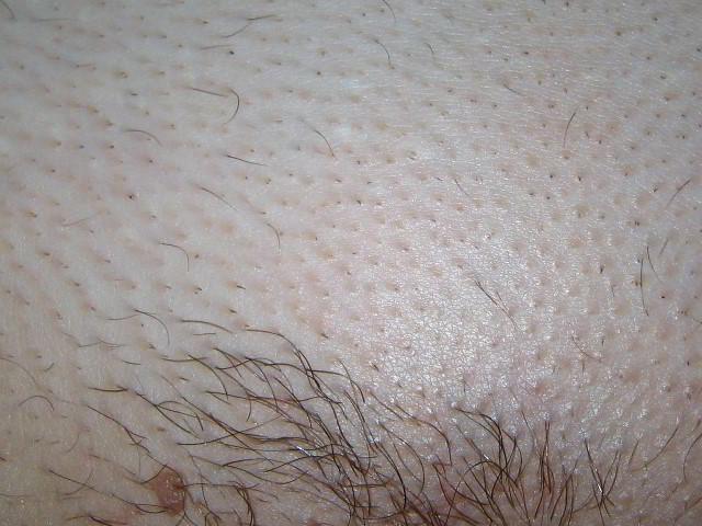 Зона бикини 5 недель после первой процедуры лазерной эпиляции