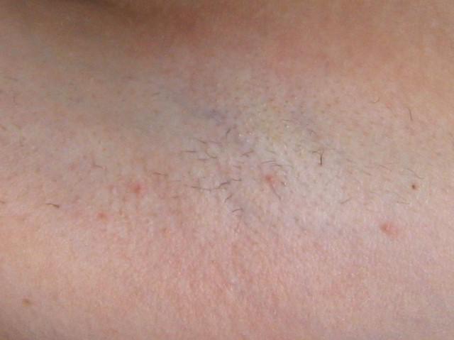 Подмышки 5 недель после первой процедуры лазерной эпиляции