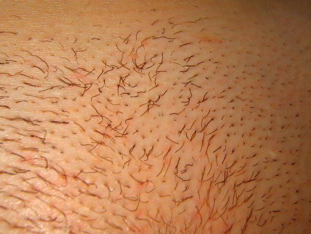 Что бы волосы после эпиляции не росли