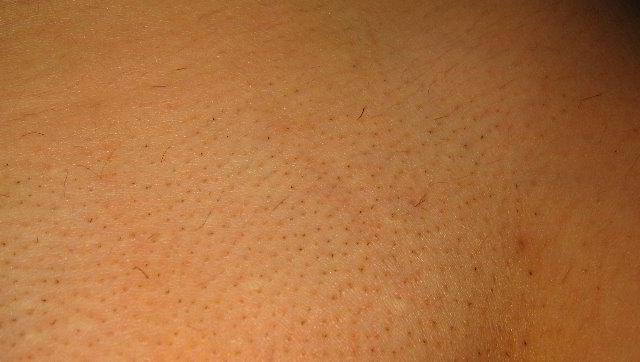 Зона бикини 4 неделя после третьей процедуры лазерной эпиляции