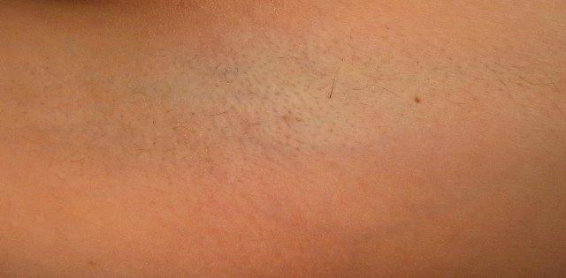 Подмышки 4 неделя после третьей процедуры лазерной эпиляции
