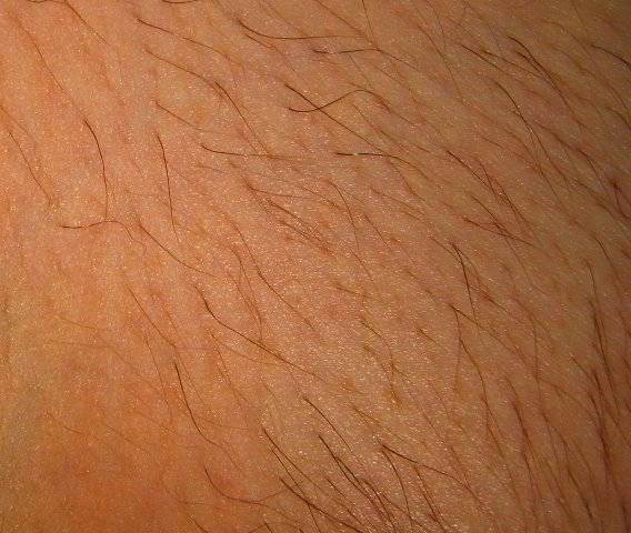 Зона бикини 13 неделя после третьей процедуры лазерной эпиляции