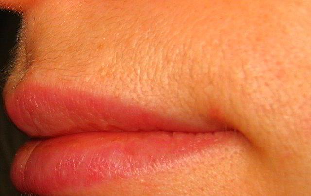 Верхняя губа 13 неделя после третьей процедуры лазерной эпиляции