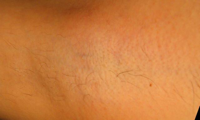 Подмышки 7 неделя после третьей процедуры лазерной эпиляции