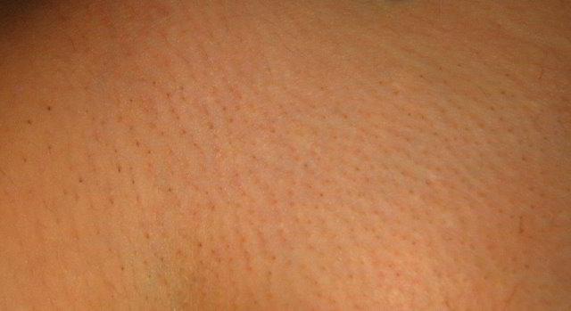 Зона бикини 5 неделя после третьей процедуры лазерной эпиляции