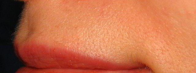 Верхняя губа 5 неделя после третьей процедуры лазерной эпиляции