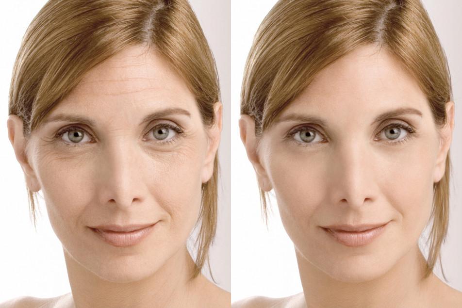 Инъекции ботокса фото до и после