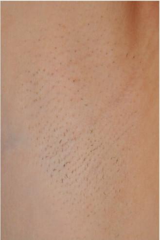 Лазерная эпиляция через сколько дней выпадают волосы