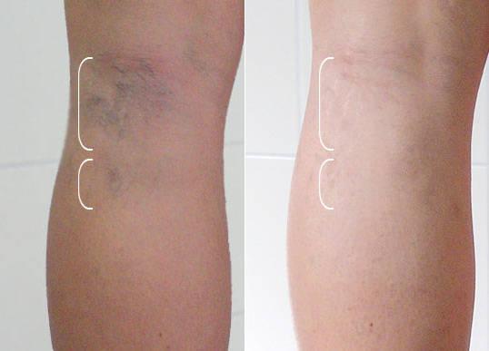 Лечение варикоза вен на ногах в Москве