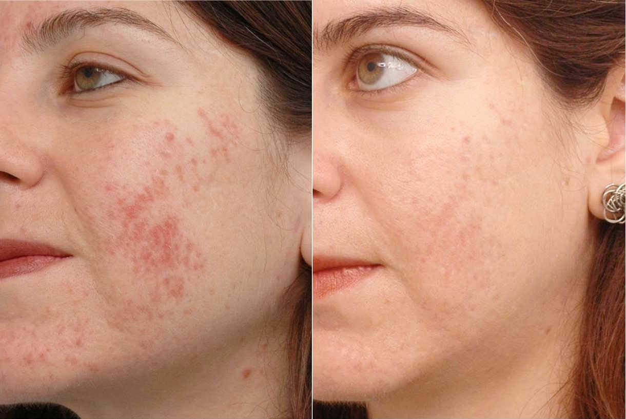 фототерапия в косметологии