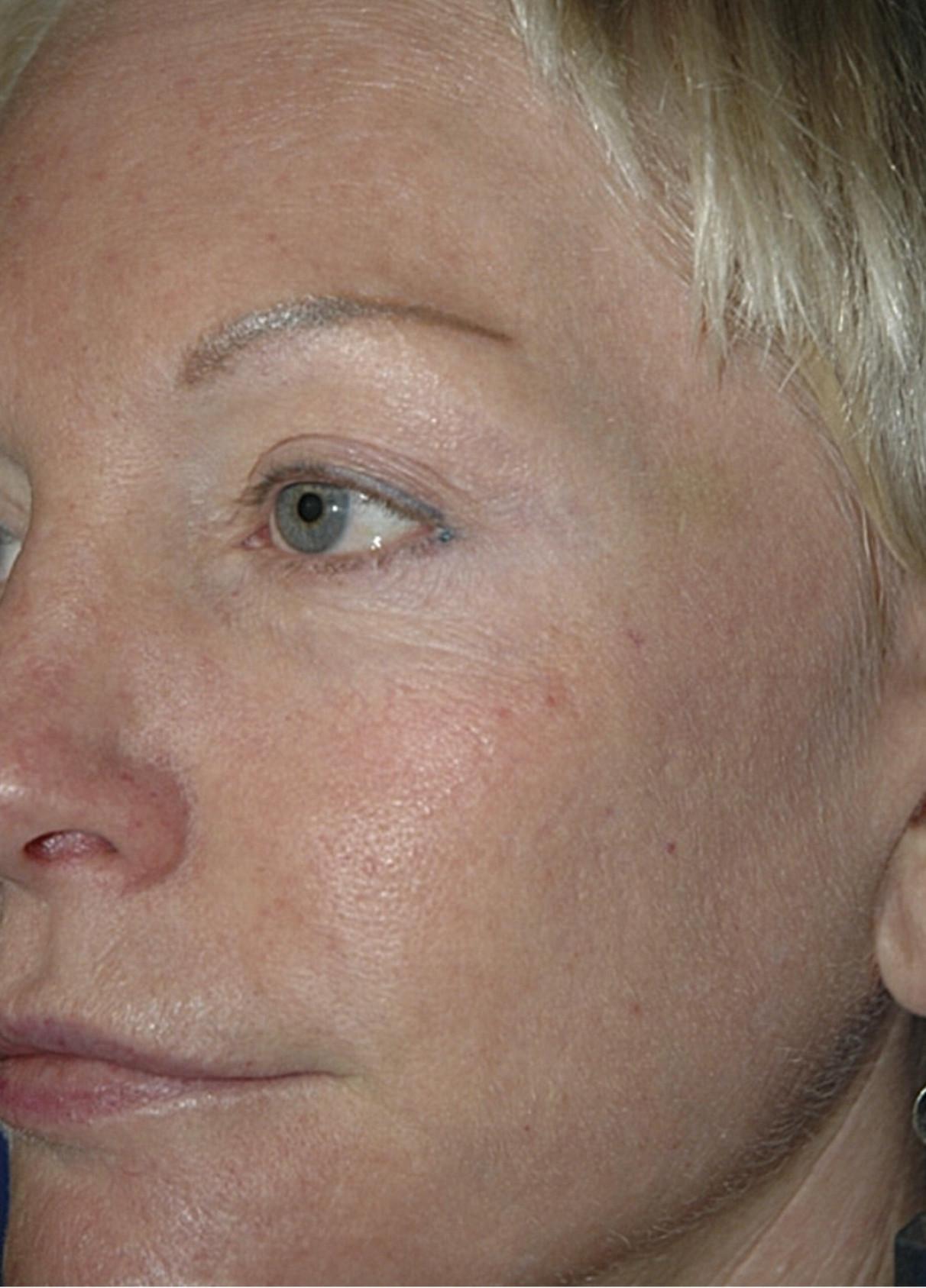 Лазерное омоложение лица fraxel restore отзывы лазерная эпиляция зоны экстра-бикини отзывы