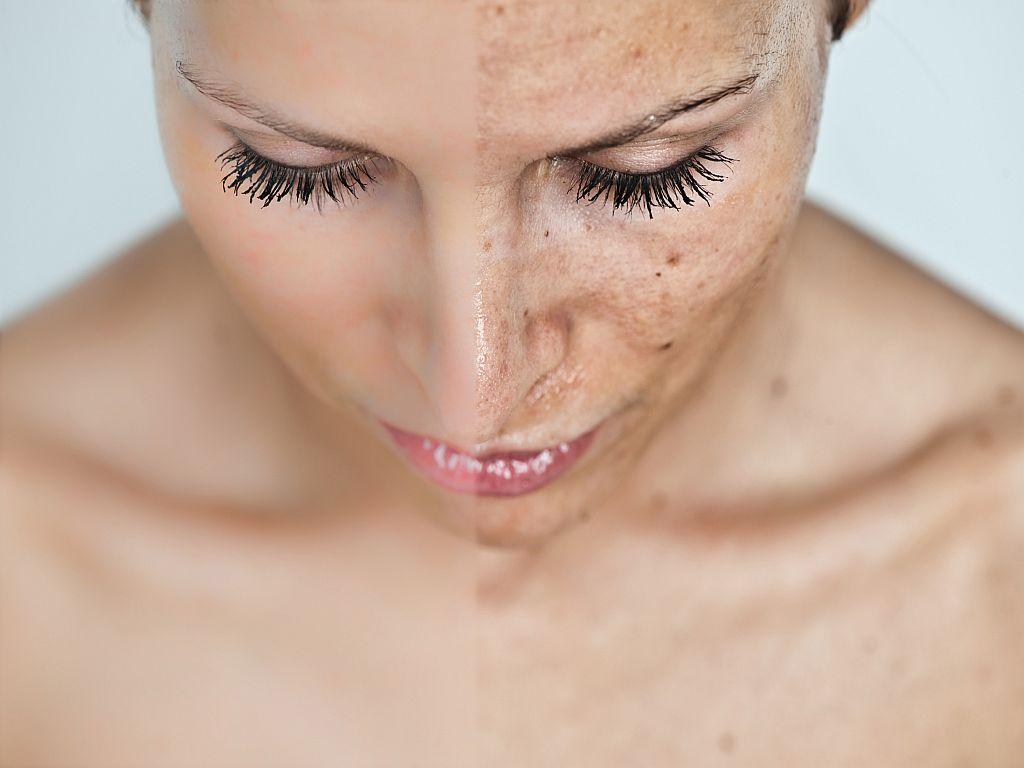 до и после омоложения кожи лица лазером Fraxel Фраксель