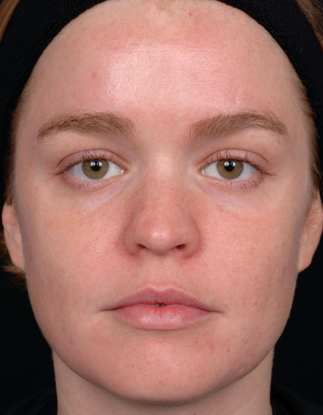 Темные пятна грибковые заболевания кожи