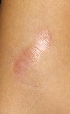 Удаление лазером СО2 большого шрама после процедуры