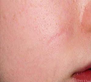 Удаление лазером СО2 шрама над губой после процедуры