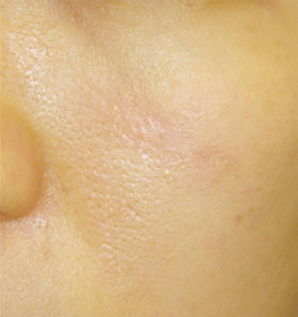 Удаление лазером СО2 шрама под глазом после процедуры