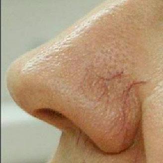 Удаление сосудистых звездочек на носу c помощью лазера до процедуры