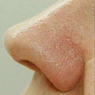 Удаление сосудистых звездочек на носу c помощью лазера после процедуры